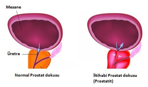 rektális ultrahang vizsgálat Gyertyák antibiotikum a prostatitis címe